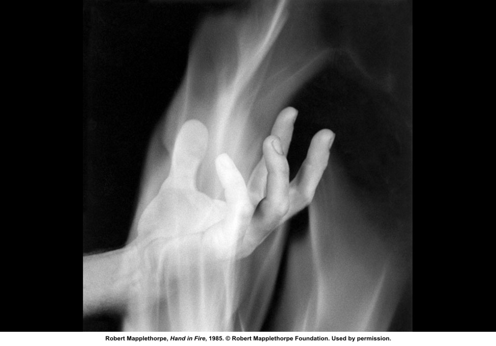 Mapplethorpe_Hand_in_Fire